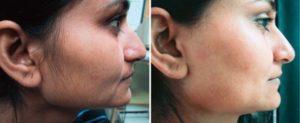 Laser Facial Hair removal