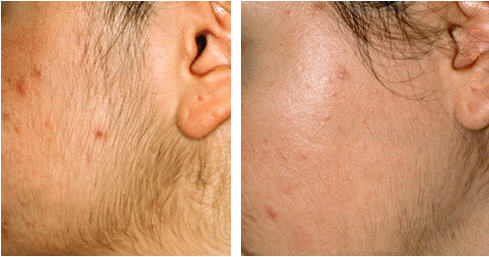 Permanent Facial Hair Removal