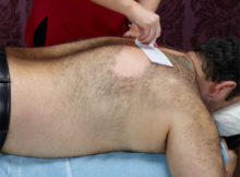 Chest and Back Hair Removal