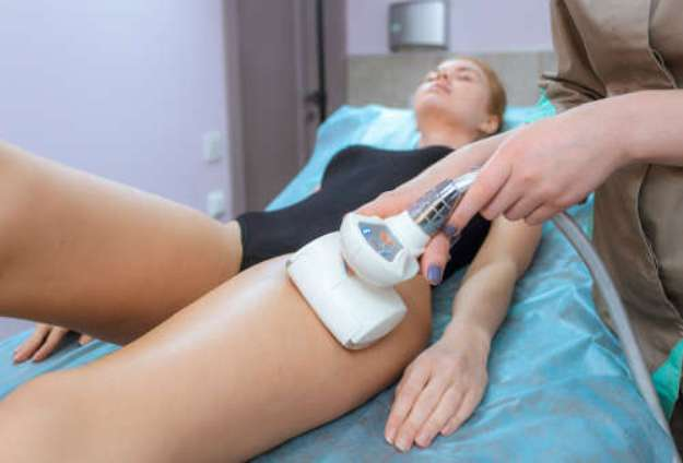 medical laser for cellulite